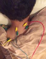 頚部脊柱管狭窄症の治療の様子