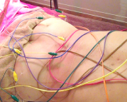 腰部脊柱管狭窄症の治療の様子