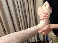 リスフラン関節捻挫の治療の様子