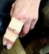 突き指の治療の様子2