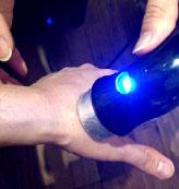 ヘバーデン結節・プシャール結節・母指CM関節症の治療の様子1