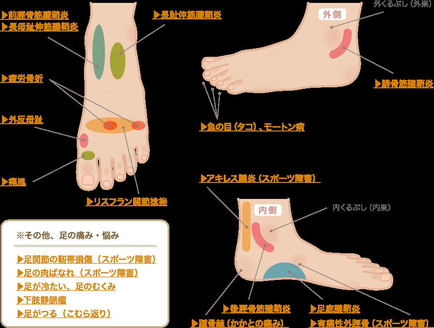 部位別で見る、足の痛み