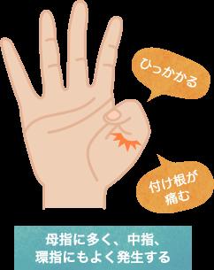 ばね指の特長・症状