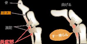 指の拘縮の特長・症状