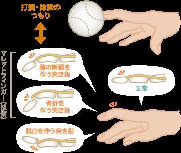 突き指の原因