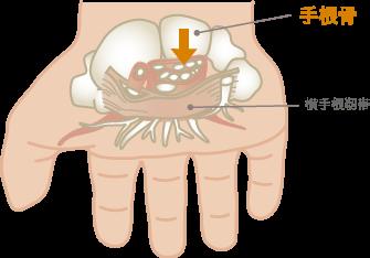 手根関節炎