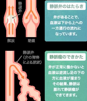 下肢静脈瘤の特長・症状