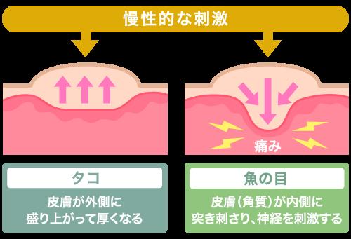 魚の目の特長・症状