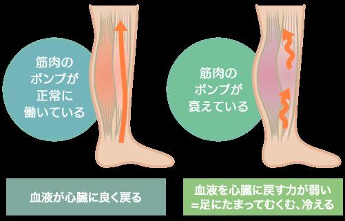 足の冷え・むくみの原因