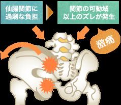 腰部脊柱管狭窄症の原因