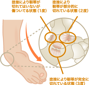 足関節捻挫の特長と症状