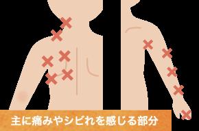 頚部脊柱管狭窄症の症状