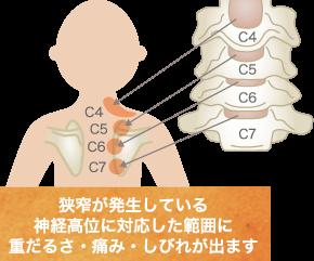 頚部脊柱管狭窄症の原因