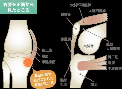 鵞足炎の原因