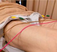 大腿四頭筋(腱)炎の治療の様子