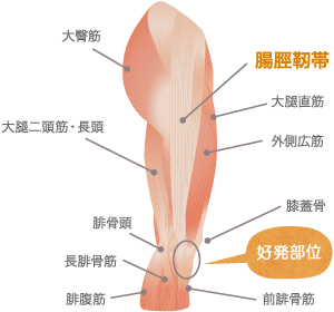 腸脛靭帯炎(ランナー膝)の治療について
