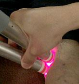 下肢静脈瘤の治療の様子