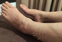 足の腱鞘炎の治療の様子2