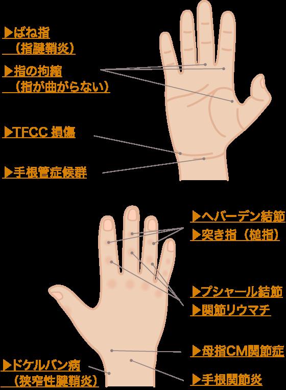 部位別で見る、手の痛み