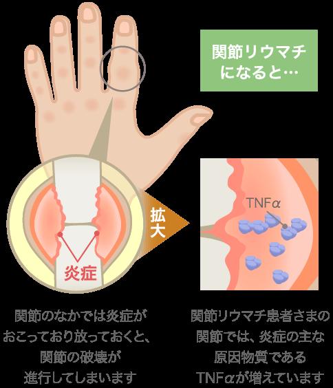 関節リウマチの特長・症状