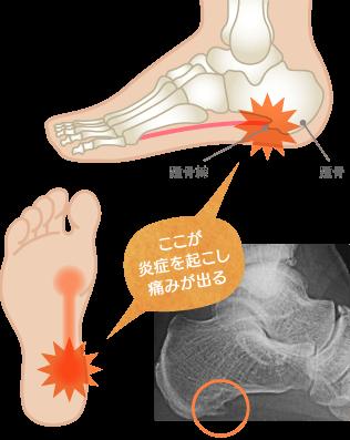 踵骨棘の原因