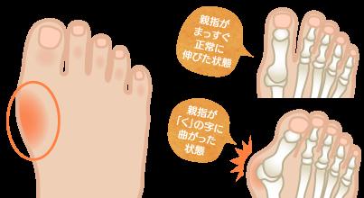 外反母趾の特長・症状