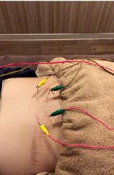 慢性椎間関節性腰痛の治療の様子