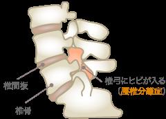 腰椎分離症の原因