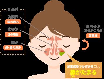 蓄膿症(副鼻腔炎)・鼻づまりの原因