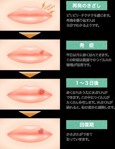 口唇ヘルペスの原因