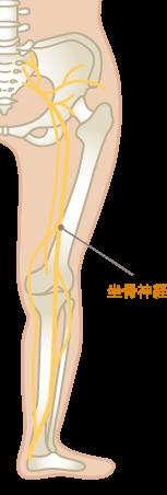 坐骨神経痛(腰、お尻の痛み)