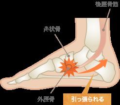 有痛性外脛骨の原因
