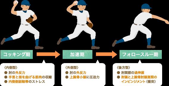 投球動作による肘にかかる負担